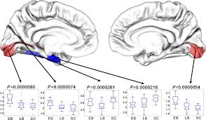 Define Cortical Blindness Thick Visual Cortex In The Early Blind Journal Of Neuroscience