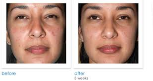 best blue light for acne free ebooks read online no download required best treatment for