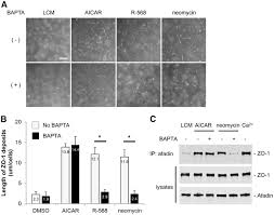 activation of the ca2 sensing receptor induces deposition of