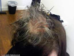 hair style for trichotillomania mother bald after spending 30 years pulling out hair due to rare