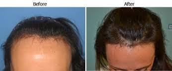 dhi hair transplant reviews best hair transplant clinic india may 2014