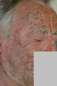 dermite du si e la dermatite atopique de l adulte la fondation pour la dermatite
