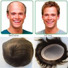 male hair extensions before and after wholesale toupee for men 5 x8 human hair pieces toppers hair