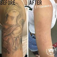 mj driver laser tattoo removal u0026 lightening brisbane qld tattoo