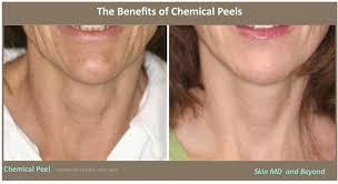 neck rejuvenation plano wrinkle reduction frisco tx