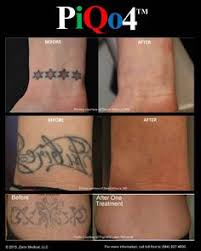 tattoo removal with one treatment with the piqo4 laser tattoo