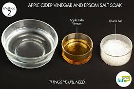 how to use vinegar to get rid of hair dye how to get rid of toenail fungus fab how