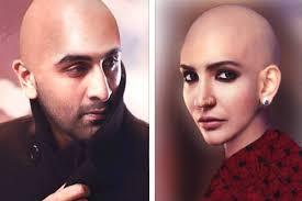 ranbir kapoor hair transplant anushka sharma bald look in ae dil hai mushkil headshave