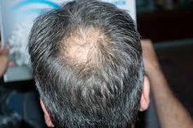 Antidepressants And Hair Loss Causes Of Acne And Hair Loss Livestrong Com