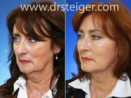 hairstyles that hide sagging jaw line facelift before and after photos face lift pictures boca raton
