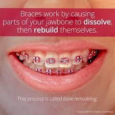 Braces Off Meme - new 15 best braces orthodontics images on pinterest wallpaper