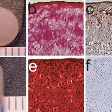 D Collagen a aggregate modulus b s modulus c ww and d