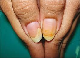 allergy to acrylic nails treatment glamour nail salon