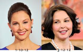 Delta Burke Delta Burke Plastic Surgery 909 U2014 Allmadecine Weddings About