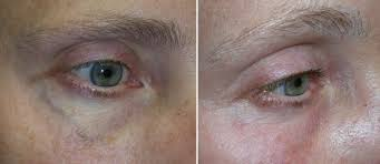 eyes sensitive to light treatment ipl for dry eyes all you need to know the eye practice
