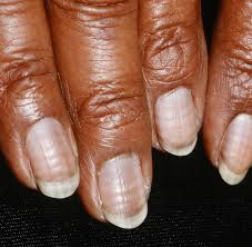 nail care guidelines nail damage and chemotherapy nail loss split