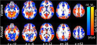 frontiers distributed neural processing predictors of multi