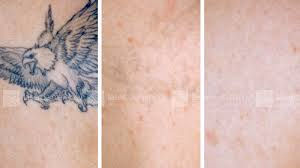 picosure tattoo removal black ink fast home tattoo removal