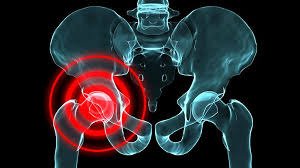 is arthritis causing your hip pain everyday health