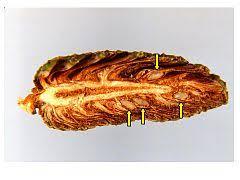 Pinecone Conifer Cone Wikipedia