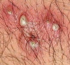 constant ingrown hairs on pubis ingrown pubic hair or herpes face2016 ru