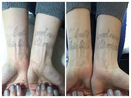 28 best tattoo removal images on pinterest html the o u0027jays and