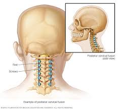fusion from back of neck mayo clinic
