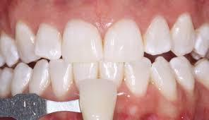 Does Laser Teeth Whitening Work Can U0027t Stop Smiling Enlighten Teeth Whitening Review Tales Of