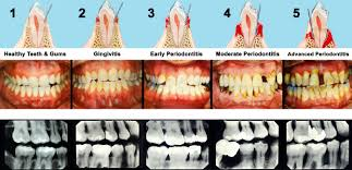 what are the different methods for tooth whitening and bleaching