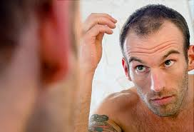 thining hair in men front men s hair loss treatments and solutions with pictures