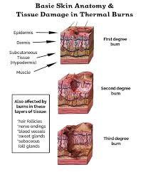 Treatment For Rug Burn Diy Burn Cream A Healing Soothing Burn Salve For Everyday Burns