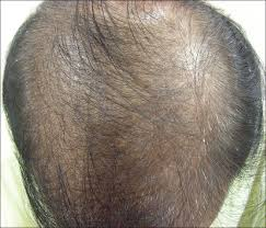 hair loss in 60 year old woman response to microneedling treatment in men with androgenetic