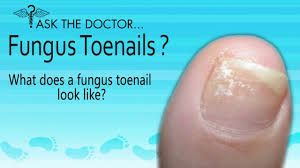 what does a fungus toenails look like audubon west chester