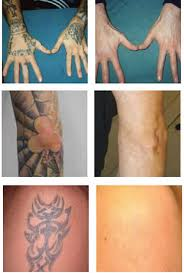 laser tattoo removal epilight new skin clinic