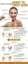 Face Acne Map The 25 Best How To Treat Acne Ideas On Pinterest How To Get Rid