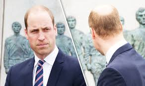 bald spor hair styles prince william s new hairdo shows off his bald patch in new photos
