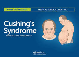 cushing u0027s syndrome nursing care management and study guide
