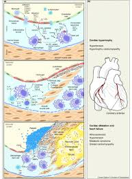 pathophysiology and biochemistry of cardiovascular disease