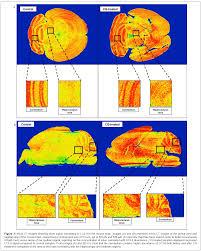 investigating basal autophagic activity in brain regions