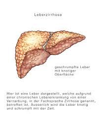 leberschwäche symptome leberzirrhose schrumpfleber eesom gesundheitsportal