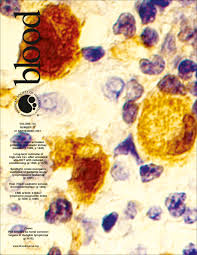 a malt lymphoma prognostic index blood journal