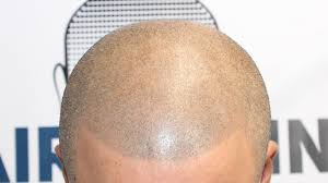pics of scalp micropigmentation on people with long hair repairing bad scalp micropigmentation treatments by hairline ink