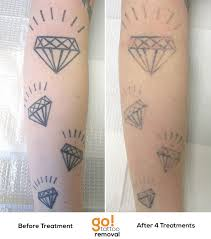 diamonds don u0027t really shine forever after 4 laser tattoo removal