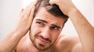shane warne hair transplant baldness treatment clinics are they worth it choice