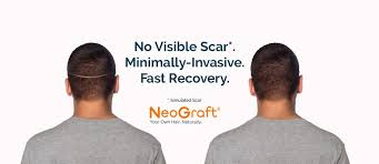 neograft recovery timeline top 5 reasons men choose hair transplant surgery with neograft