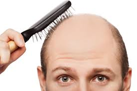 hair loss treatment home remedie howएफएन news information