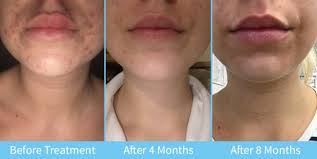 light therapy for acne scars acne treatment in london the uk from courthouse clinics