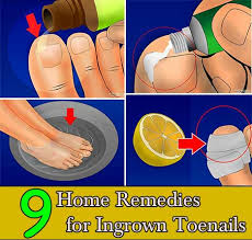 9 home remedies for ingrown toenails home and gardening ideas