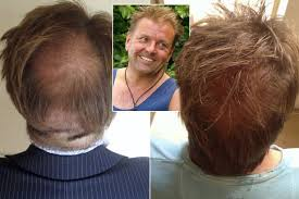 paddy mcguinness hair transplant i m a celebrity s martin roberts says hair transplant changed his