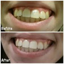 pro light dental whitening system reviews luster pro light in the uk at boots your reviews pinterest